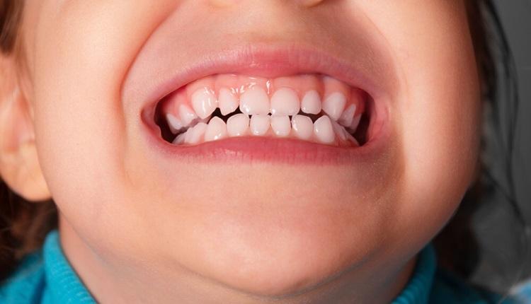 Бруксизм у детей: почему ребенок скрипит зубами во сне